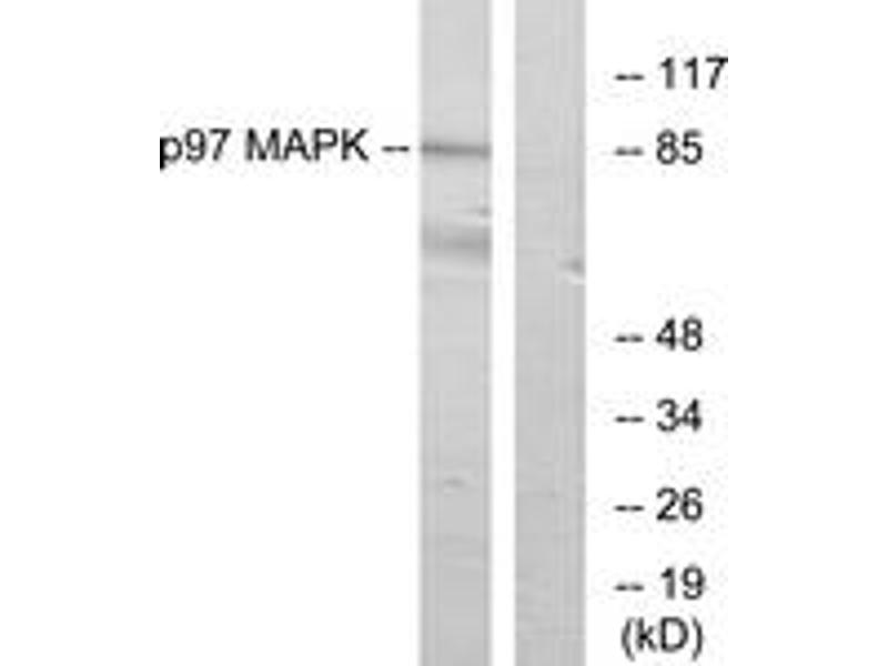 Western Blotting (WB) image for anti-Mitogen-Activated Protein Kinase 6 (MAPK6) (AA 461-510) antibody (ABIN1533932)