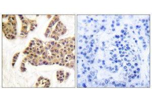 Image no. 1 for anti-BCL2-Associated Agonist of Cell Death (BAD) (pSer128), (pSer91) antibody (ABIN1847348)