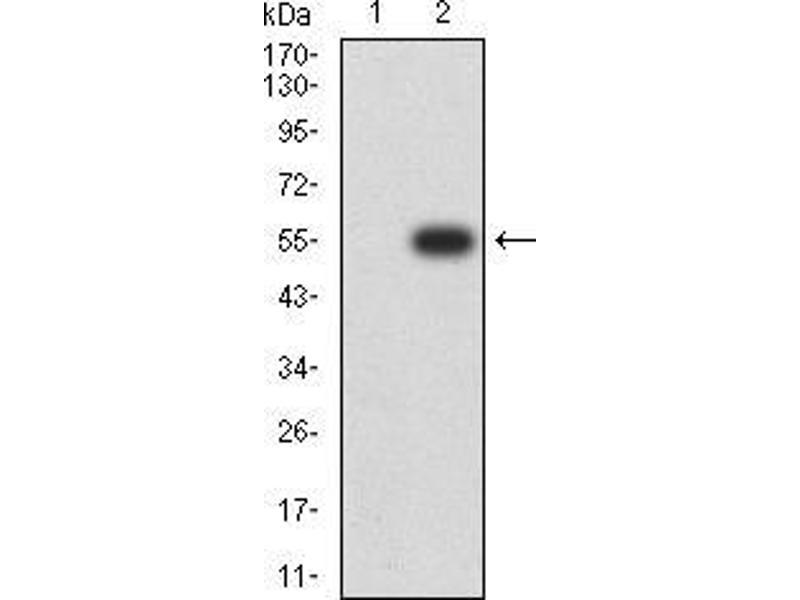 Western Blotting (WB) image for anti-Growth Hormone 1 (GH1) (AA 1-217) antibody (ABIN4880741)