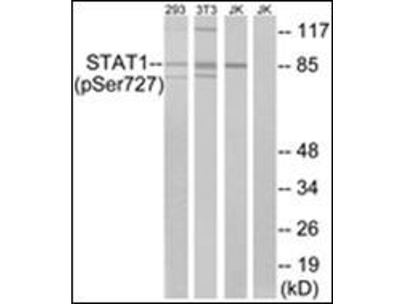 Western Blotting (WB) image for anti-Signal Transducer and Activator of Transcription 1, 91kDa (STAT1) (pSer727) antibody (ABIN5611519)