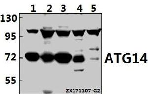 Image no. 1 for anti-ATG14 Autophagy Related 14 (ATG14) (AA 152-406) antibody (ABIN6718804)