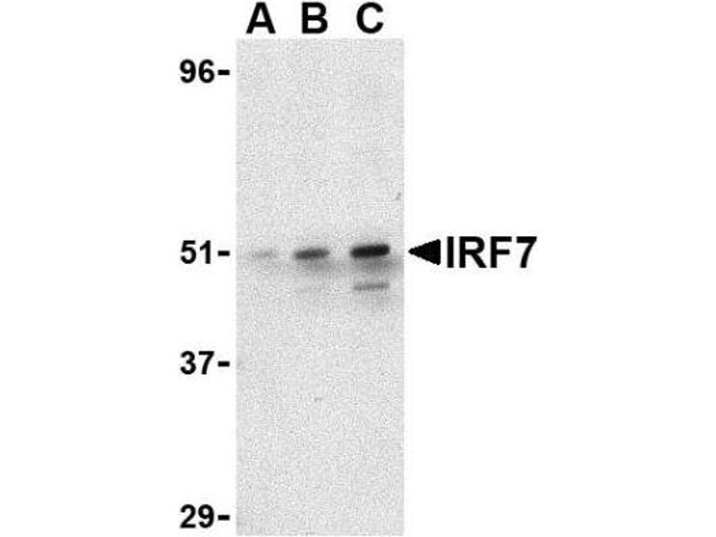 Western Blotting (WB) image for anti-Interferon Regulatory Factor 7 (IRF7) antibody (ABIN4327614)