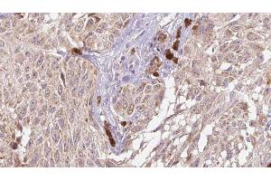 Image no. 2 for anti-Cell Growth Regulator with EF-Hand Domain 1 (CGREF1) antibody (ABIN6258752)