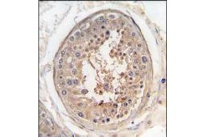 Image no. 1 for anti-Sperm Associated Antigen 9 (SPAG9) (AA 610-640), (Middle Region) antibody (ABIN359538)