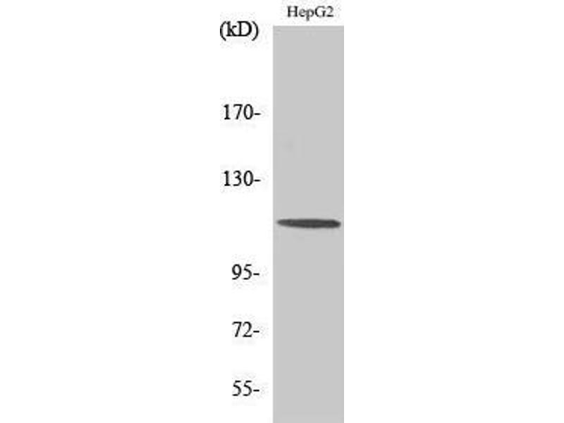 Western Blotting (WB) image for anti-CAP-GLY Domain Containing Linker Protein 2 (CLIP2) (C-Term) antibody (ABIN3183956)