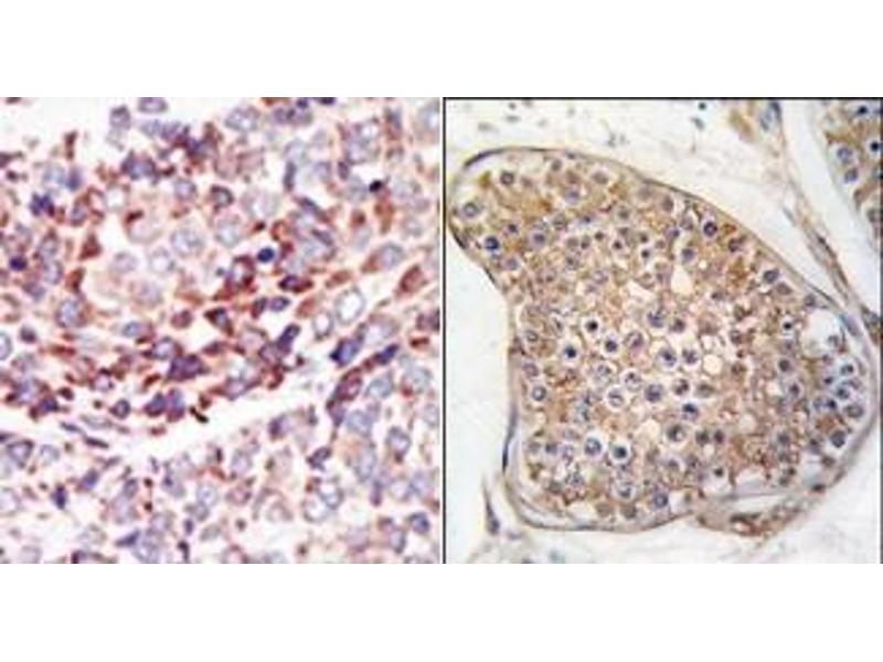 image for anti-TEK antibody (TEK Tyrosine Kinase, Endothelial) (C-Term) (ABIN359945)