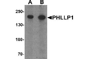 Western Blotting (WB) image for anti-PH Domain and Leucine Rich Repeat Protein Phosphatase 1 (PHLPP1) (N-Term) antibody (ABIN1031510)