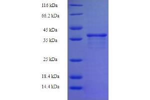 Image no. 1 for Zinc Finger Protein 26 (ZNF26) (AA 335-533), (partial) protein (His-SUMO Tag) (ABIN5710652)