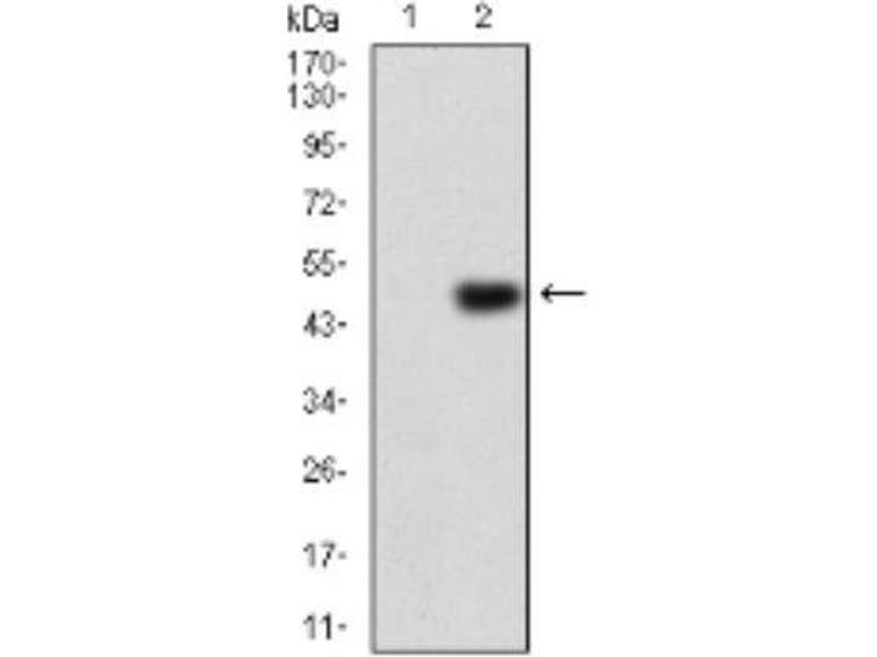 Western Blotting (WB) image for anti-ERBB4 antibody (V-Erb-A erythroblastic Leukemia Viral Oncogene Homolog 4 (Avian)) (ABIN4309326)