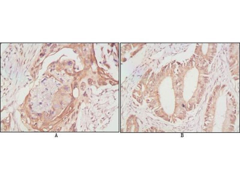 Immunohistochemistry (IHC) image for anti-DEAD Box Protein 4 (DDX4) antibody (ABIN969084)
