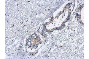 Immunohistochemistry (Paraffin-embedded Sections) (IHC (p)) image for anti-Echinoderm Microtubule Associated Protein Like 2 (EML2) (Center) antibody (ABIN4307855)
