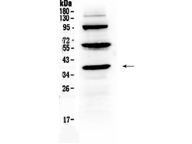 Western Blotting (WB) image for anti-Thrombopoietin (THPO) (AA 22-259) antibody (ABIN5518876)