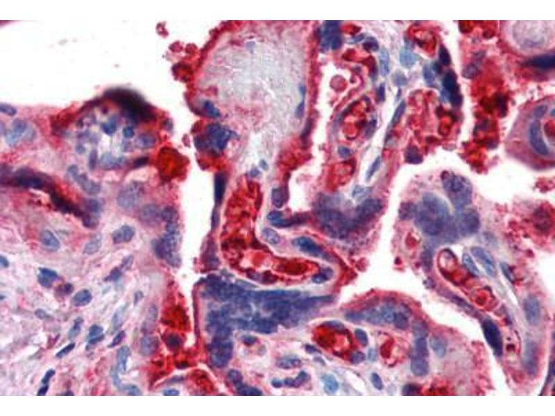 Immunohistochemistry (Paraffin-embedded Sections) (IHC (p)) image for anti-Complement Component 4B (C4B) antibody (ABIN364282)