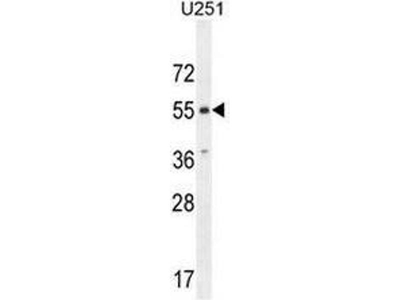 Western Blotting (WB) image for anti-CXCR7 antibody (Chemokine (C-X-C Motif) Receptor 7) (AA 340-370) (ABIN951737)