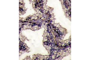 Image no. 1 for anti-Lactotransferrin (LTF) (AA 219-248), (Center) antibody (ABIN1882099)
