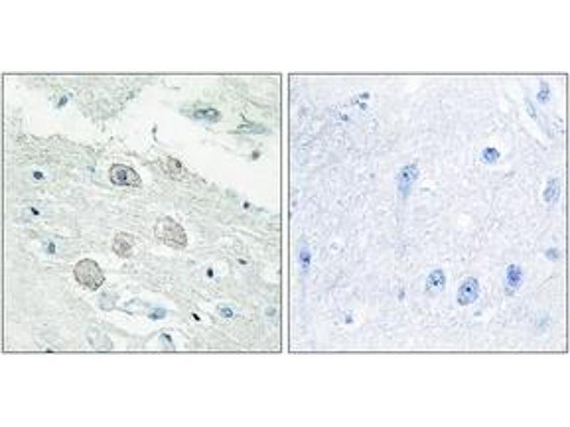 Immunohistochemistry (IHC) image for anti-Janus Kinase 1 (JAK1) (AA 91-140) antibody (ABIN1533664)