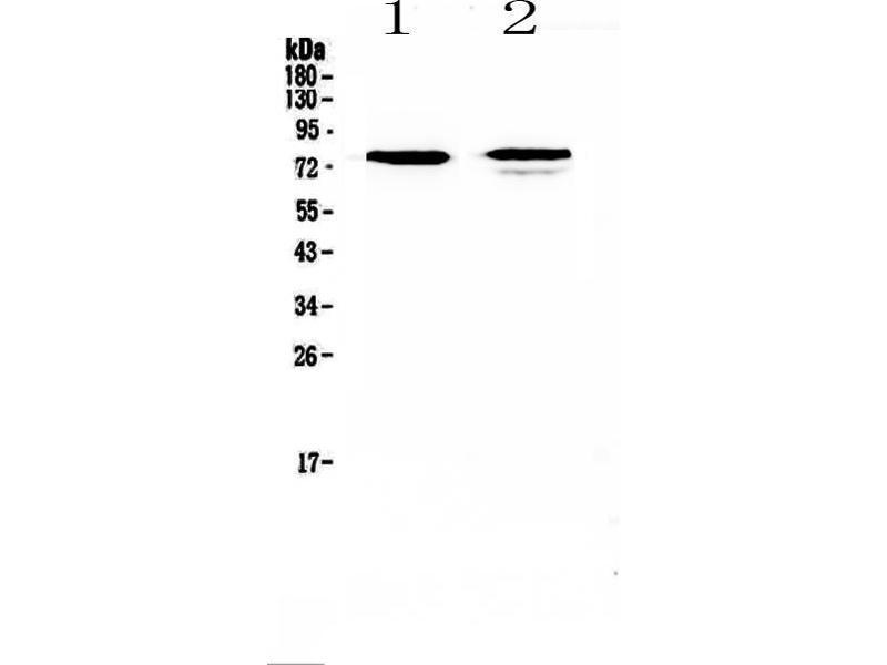 Western Blotting (WB) image for anti-Frizzled Family Receptor 3 (FZD3) antibody (ABIN5693226)