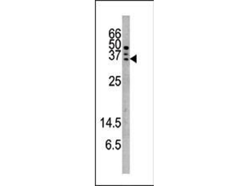 Western Blotting (WB) image for anti-Caspase 6 antibody (Caspase 6, Apoptosis-Related Cysteine Peptidase) (pSer257) (ABIN389525)