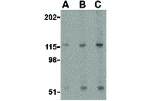 Image no. 2 for anti-Protease, serine, 12 (Neurotrypsin, Motopsin) (PRSS12) (N-Term) antibody (ABIN6656954)