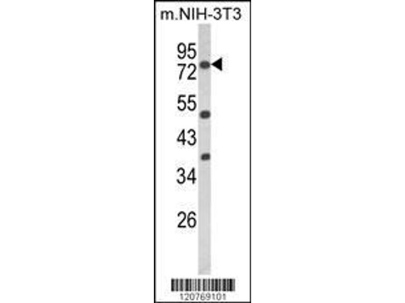 Western Blotting (WB) image for anti-Protein Kinase C, alpha (PKCa) (AA 75-103), (N-Term) antibody (ABIN652517)
