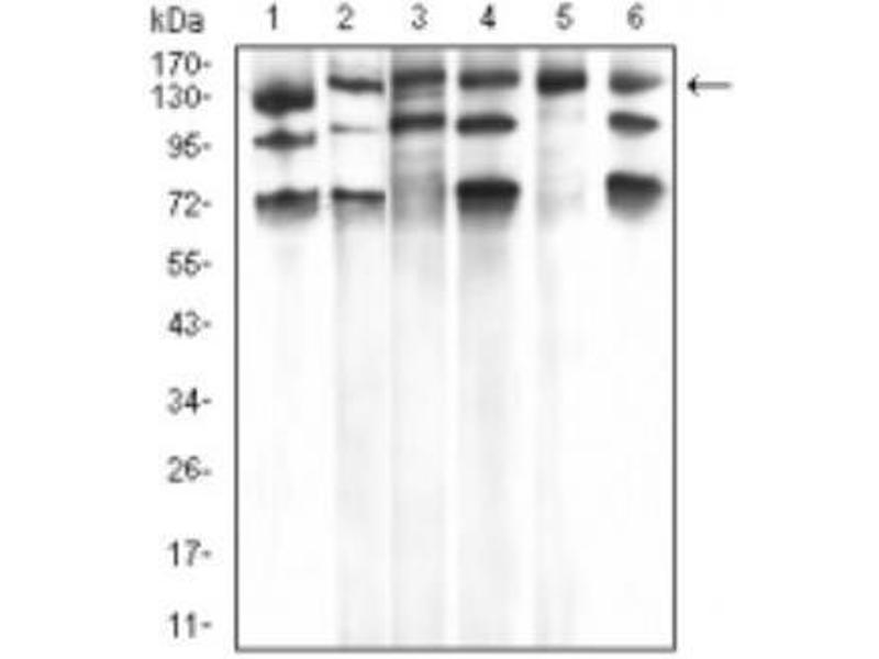 Western Blotting (WB) image for anti-phospholipase C, gamma 1 (PLCG1) antibody (ABIN4346129)
