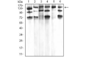 Western Blotting (WB) image for anti-phospholipase C, gamma 1 (PLCG1) antibody (ABIN4346129)