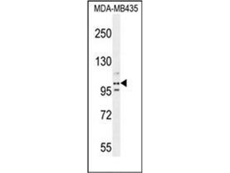 Western Blotting (WB) image for anti-PEAR1 antibody (Platelet Endothelial Aggregation Receptor 1) (AA 968-998) (ABIN954080)