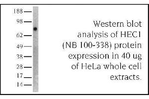 Western Blotting (WB) image for anti-NDC80 Kinetochore Complex Component Homolog (S. Cerevisiae) (NDC80) antibody (ABIN151804)