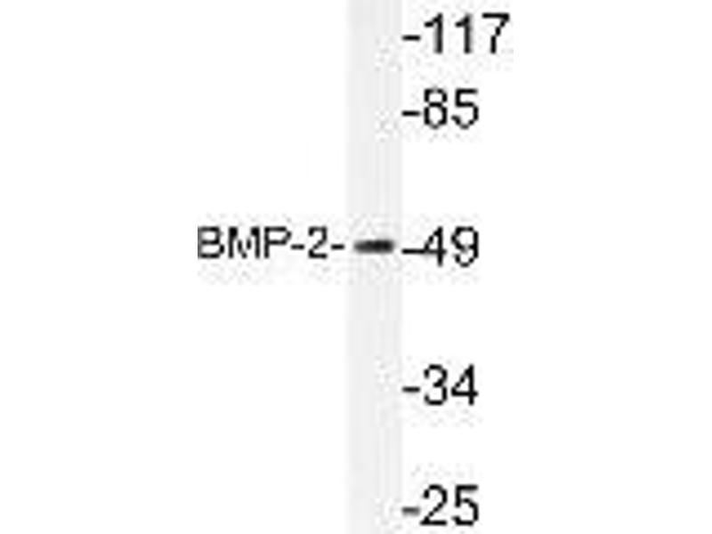 Western Blotting (WB) image for anti-Bone Morphogenetic Protein 2 (BMP2) (AA 250-350), (Internal Region) antibody (ABIN446957)