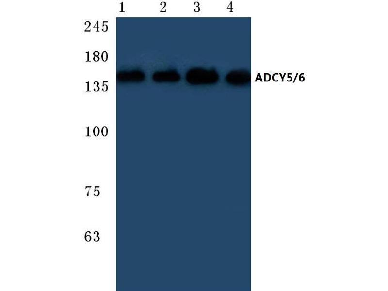 Western Blotting (WB) image for anti-Adenylate Cyclase 5 (ADCY5) antibody (ABIN498295)