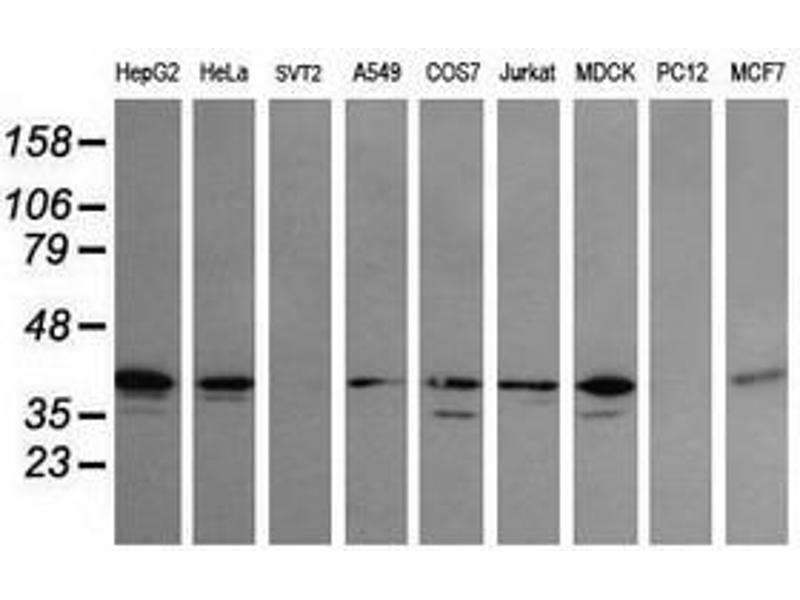 image for anti-Mitogen-Activated Protein Kinase Kinase 3 (MAP2K3) antibody (ABIN1499414)