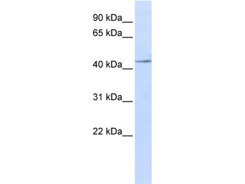 Western Blotting (WB) image for anti-Interleukin 11 Receptor, alpha (IL11RA) (N-Term) antibody (ABIN2782643)