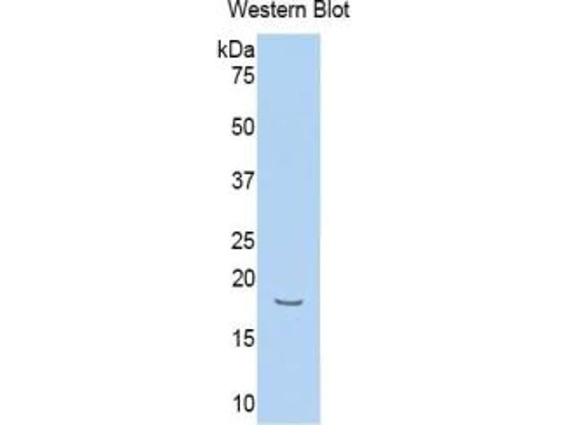 Hemopexin (HPX) ELISA Kit (3)