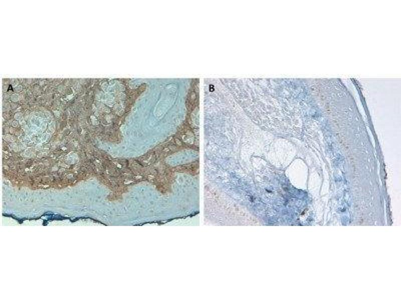 Immunohistochemistry (IHC) image for anti-Collagen, Type I, alpha 1 (COL1A1) antibody (FITC) (ABIN4299598)