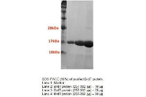 Image no. 1 for Bromodomain, Testis-Specific (BRDT) (AA 257-382) protein (His tag) (ABIN1525893)