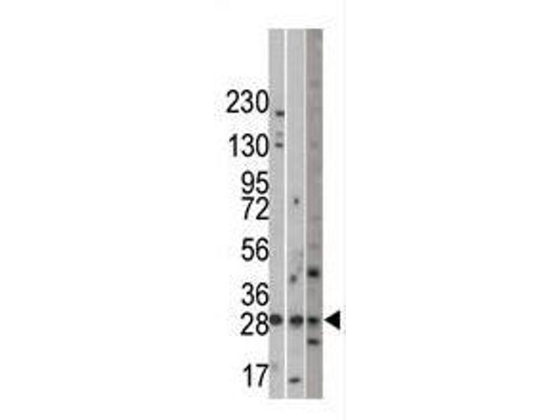 Image no. 1 for anti-Ubiquitin Protein Ligase E3 Component N-Recognin 5 (UBR5) (C-Term) antibody (ABIN357465)
