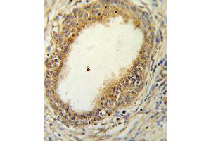 Image no. 2 for anti-Hyaluronan and Proteoglycan Link Protein 1 (HAPLN1) antibody (ABIN3004323)