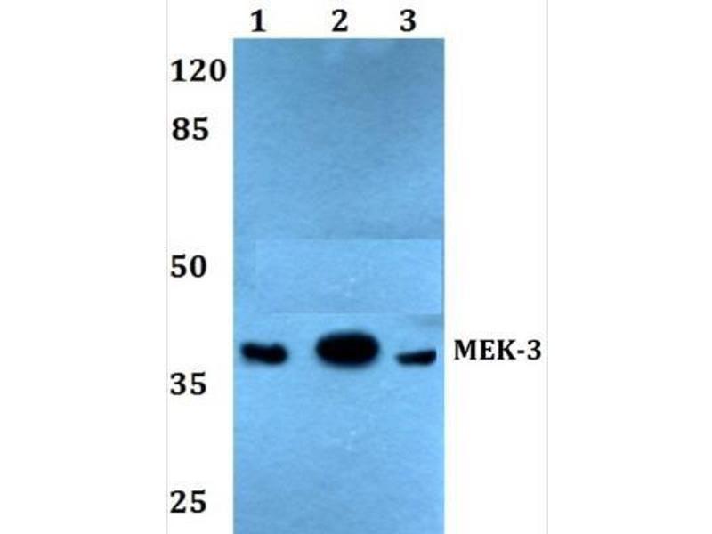 Western Blotting (WB) image for anti-Mitogen-Activated Protein Kinase Kinase 3 (MAP2K3) antibody (ABIN407737)