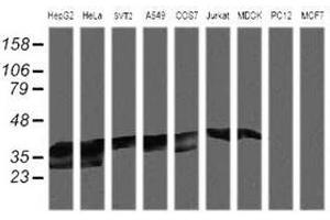 image for anti-MAP2K3 antibody (Mitogen-Activated Protein Kinase Kinase 3) (ABIN1499412)