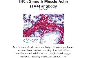 image for anti-Actin, alpha 2, Smooth Muscle, Aorta (ACTA2) (N-Term) antibody (ABIN1722914)