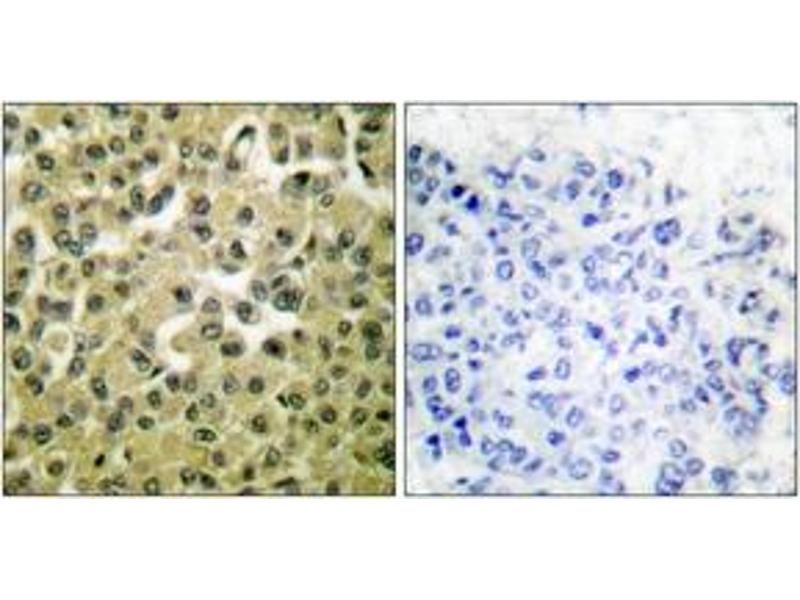 Immunohistochemistry (IHC) image for anti-MCL-1 antibody (Induced Myeloid Leukemia Cell Differentiation Protein Mcl-1) (ABIN1533338)