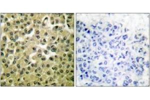 Immunohistochemistry (IHC) image for anti-Induced Myeloid Leukemia Cell Differentiation Protein Mcl-1 (MCL1) (AA 91-140) antibody (ABIN1533338)