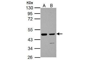 Image no. 3 for anti-Isocitrate Dehydrogenase 1 (NADP+), Soluble (IDH1) (Center) antibody (ABIN2856056)