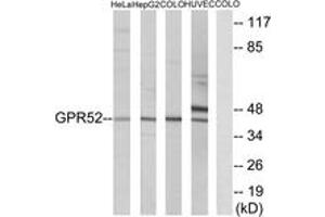 Image no. 1 for anti-G Protein-Coupled Receptor 52 (GPR52) (AA 311-360) antibody (ABIN1535745)