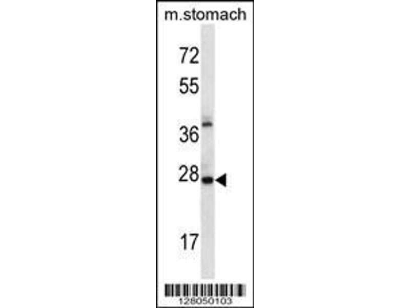 Western Blotting (WB) image for anti-AlkB, Alkylation Repair Homolog 4 (E. Coli) (ALKBH4) (AA 88-117), (Center) antibody (ABIN656701)