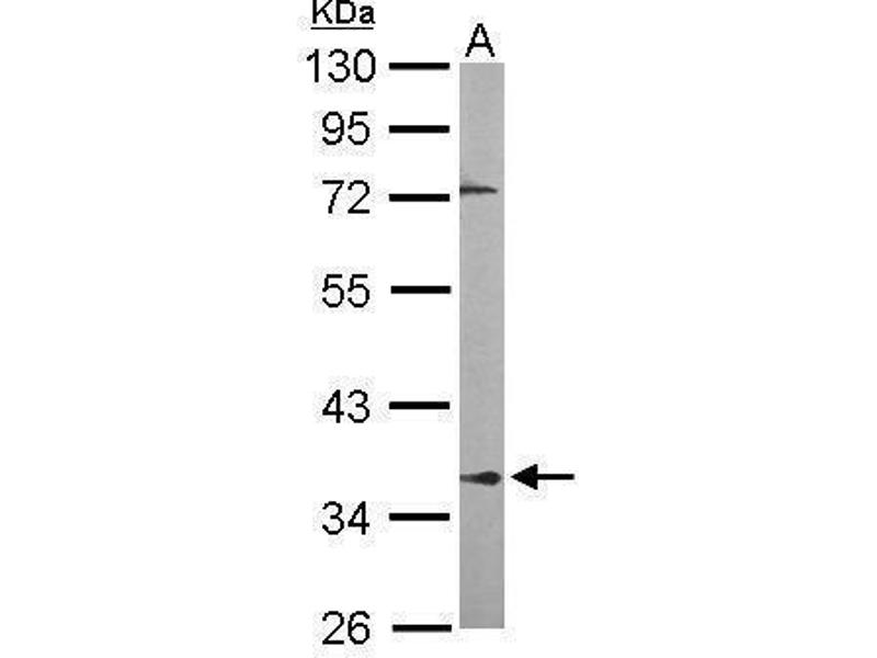 Western Blotting (WB) image for anti-Protein Phosphatase 2A Activator, Regulatory Subunit 4 (PPP2R4) (Center) antibody (ABIN2856172)