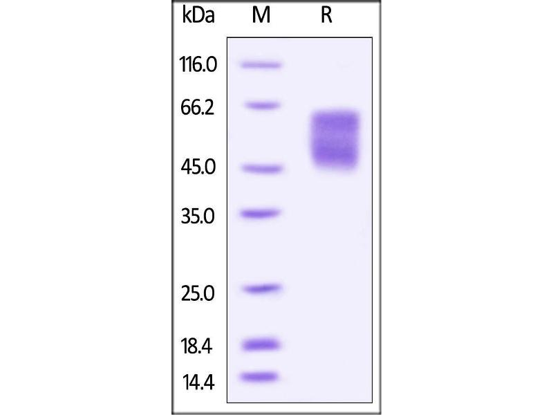 SDS-PAGE (SDS) image for V-Set Domain Containing T Cell Activation Inhibitor 1 (VTCN1) (AA 29-258) (Active) protein (AVI tag,Biotin,His tag) (ABIN4949004)