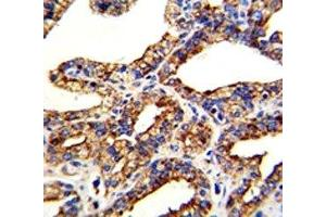 Image no. 1 for anti-Tumor-Associated Calcium Signal Transducer 2 (TACSTD2) (AA 162-190) antibody (ABIN3029404)
