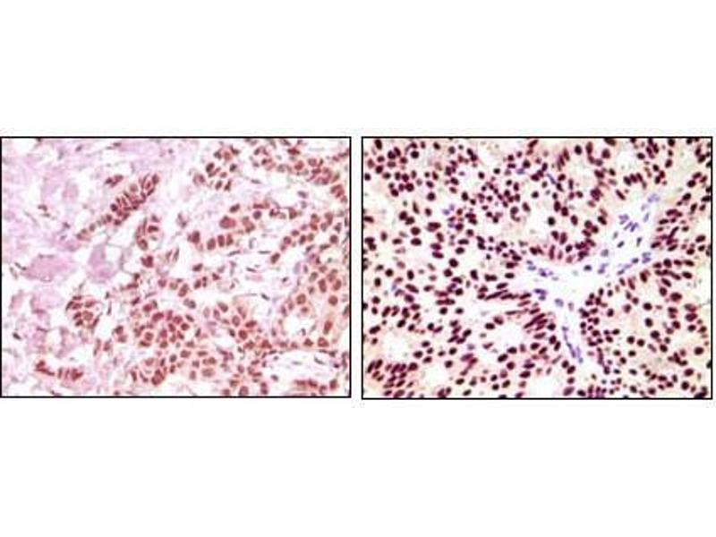 Immunohistochemistry (IHC) image for anti-Estrogen Receptor 1 (ESR1) (AA 410-592) antibody (ABIN3210000)
