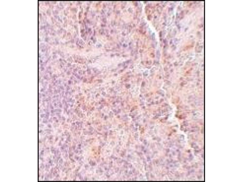 Immunohistochemistry (Paraffin-embedded Sections) (IHC (p)) image for anti-SQSTM1 antibody (Sequestosome 1) (C-Term) (ABIN497992)